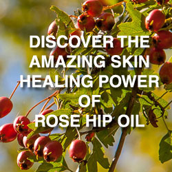 Kosmea Rose Hip Oil